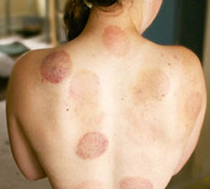 cupping Marks